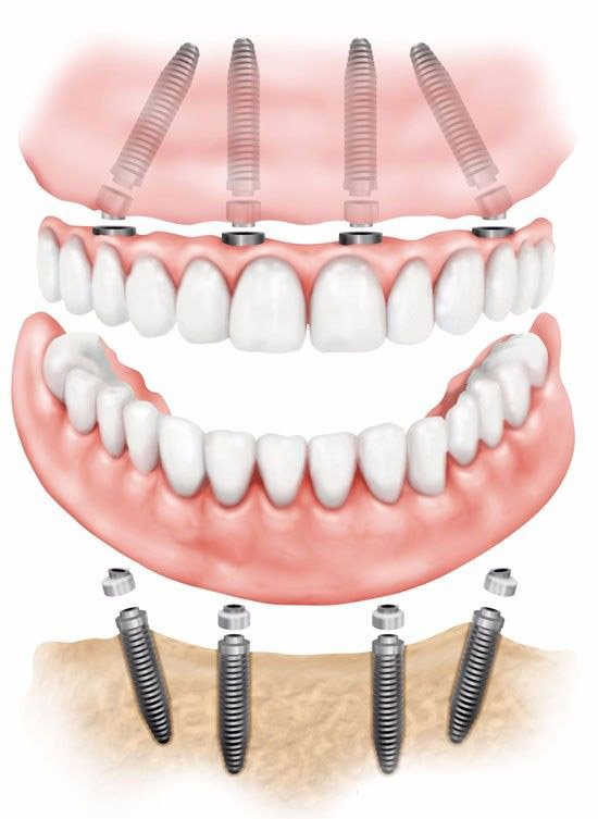 all on 4 dental implants near Peoria AZ implant dentures