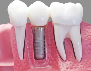implant dentures in Sun City AZ permanent dentures