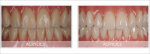 implant dentures in Sun City AZ all on 4 dental implants Surprise AZ
