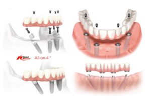 implant supported dentures in Sun City AZ all on 4 dental implants Surprise AZ