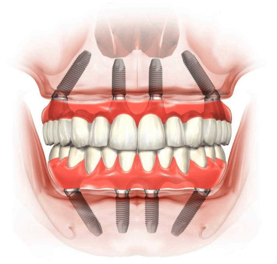 Detailed diagram of how All on 4 implant supported dentures are placed.