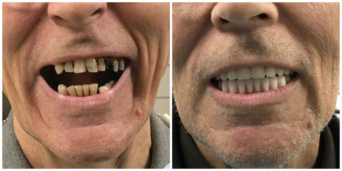 Peoria implant patient John's before and after denture photos.