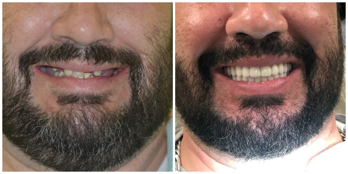 Justin from Surprise AZ experienced a dramatic smile transformation using All on 4 denture implants.